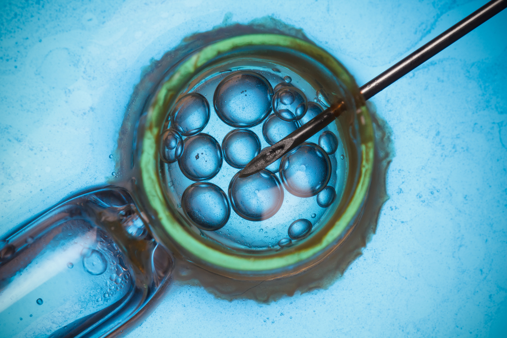 The Role of Surgery and In Vitro Fertilization To Treat Infertility in Deep Endometriosis