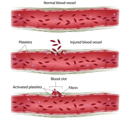 platelets and endometriosis
