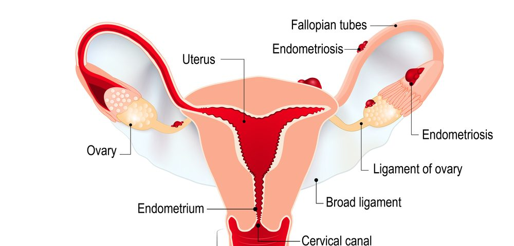 Bladder DIE, a Form of Endometriosis, Not Caused by Adenomyosis, Study Suggests