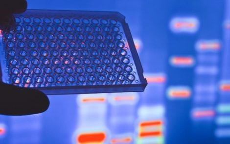 Genetic Markers of Endometriosis May Predict Response to Lupron Depot, Study Reports